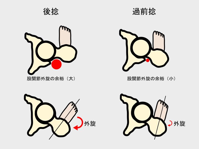 前捻角(後捻と前捻)による股関節外旋の違い