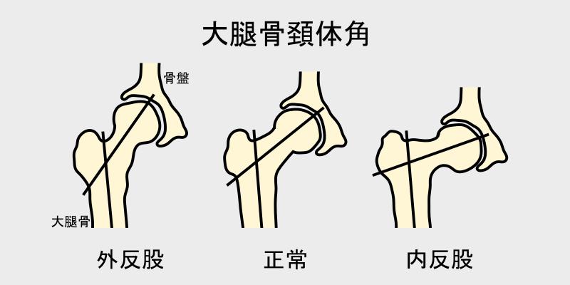 大腿骨頚体角(外反股、正常、内反股)