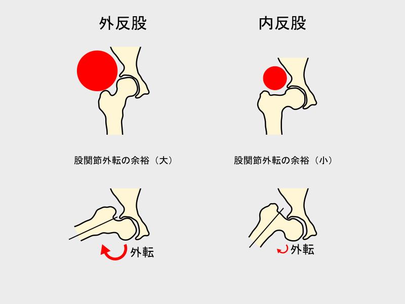 外反股と内反股の股関節外転の差